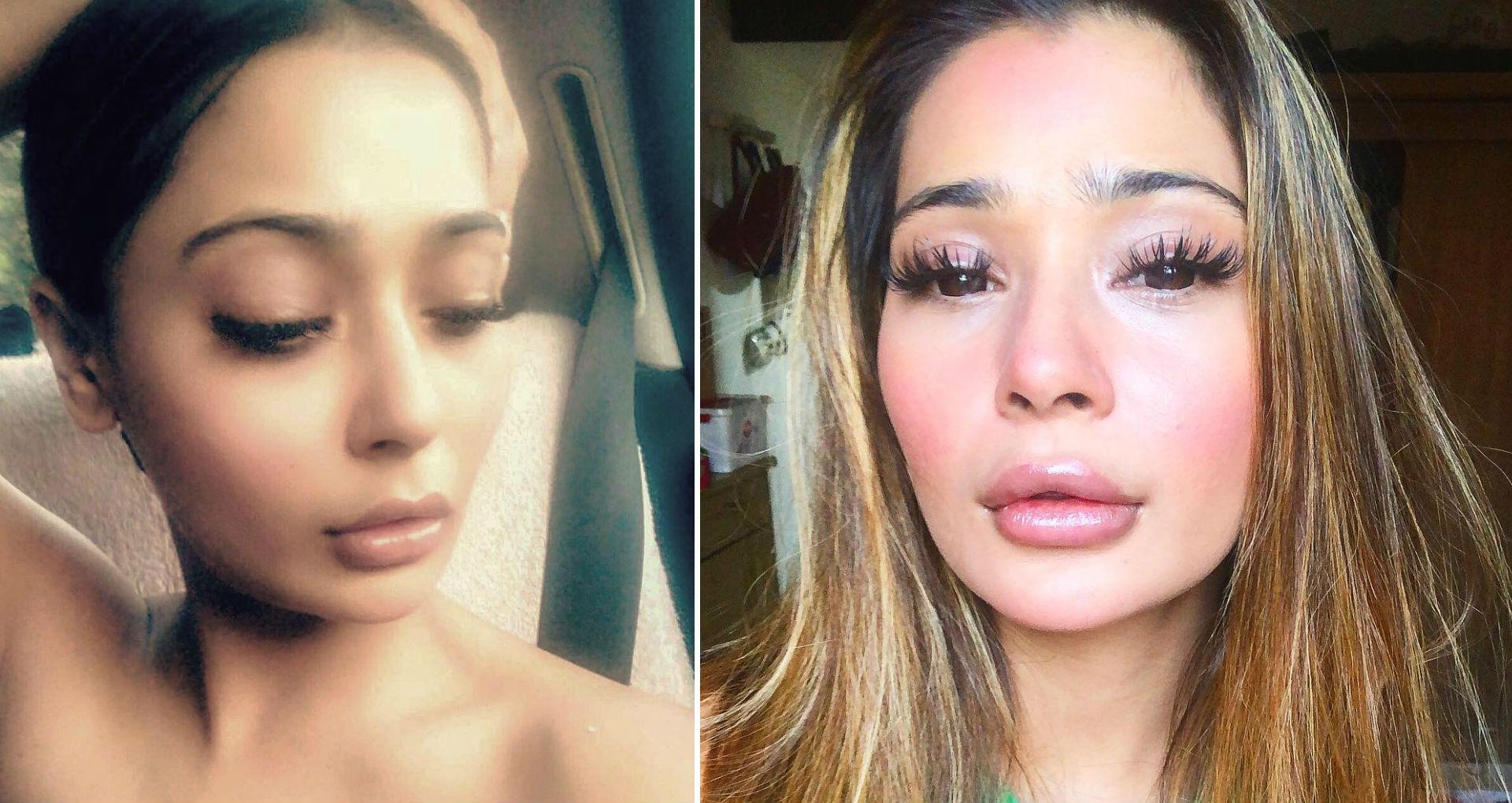 लिप सर्जरी कराने पर ट्रोल हुईं अभिनेत्री सारा खान, अब ऐसा दिख रहा है एक्ट्रेस का चेहरा