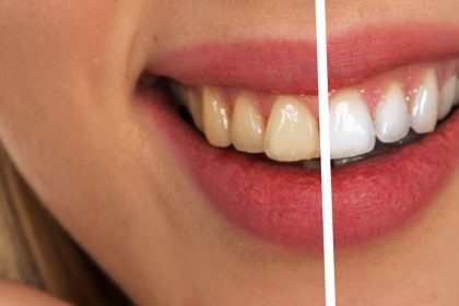 Teeth Whitening Homemade Tips