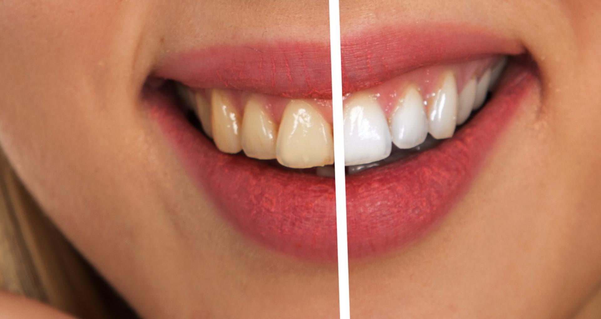 दांतों का पीलापन मिनटों में होगा खत्म, घर पर टमाटर से बने इस आसान पेस्ट का करें इस्तेमाल