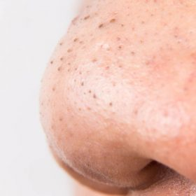 Blackheads Removal