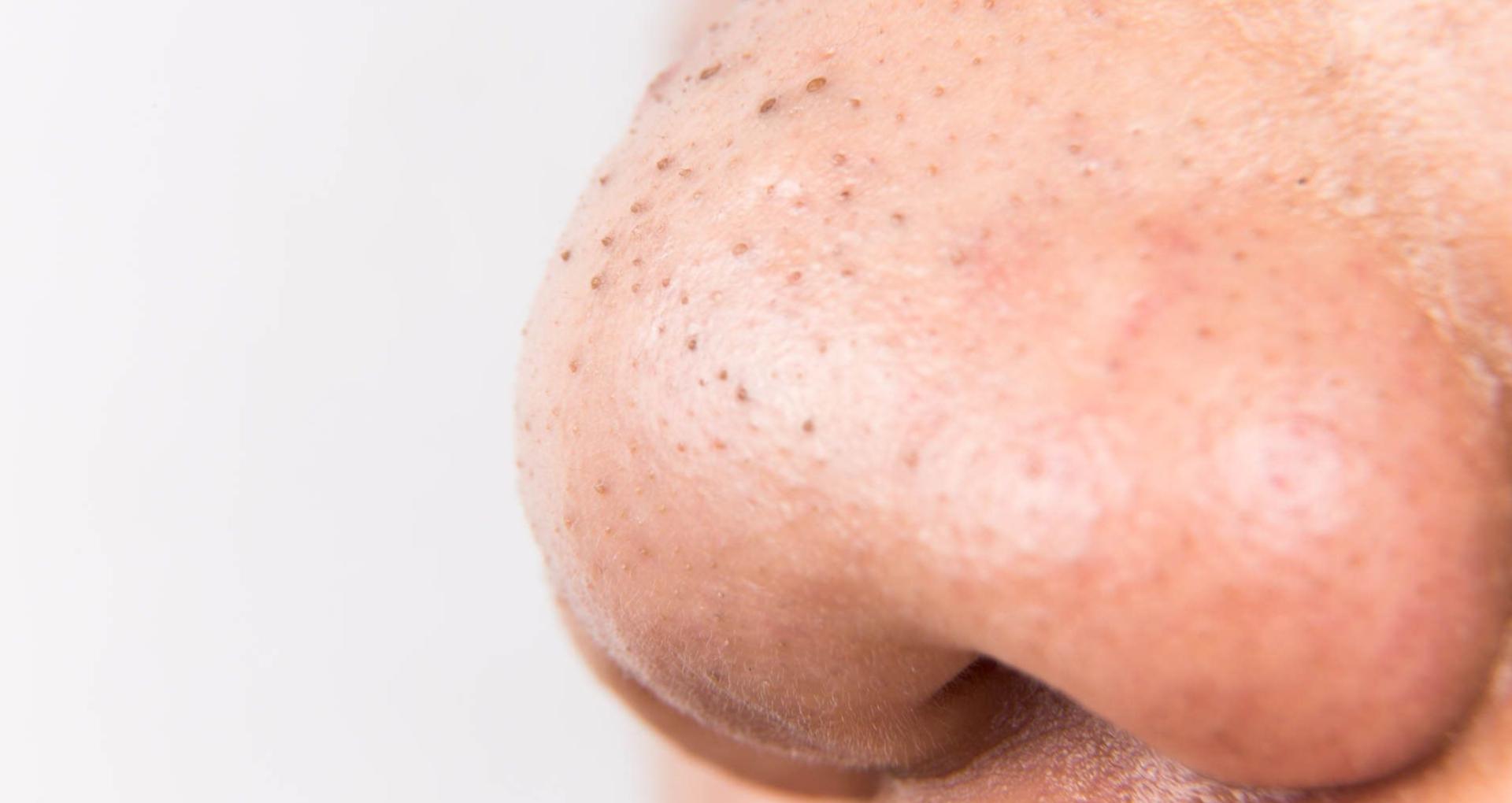 Beauty Tips: जिद्दी से जिद्दी ब्लैकहेड्स की परेशानी होगी कुछ ही दिनों में छूमंतर, बस अपनाएं ये घरेलू नुस्खे