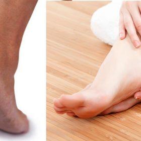 Cracked Heels Home Remedies