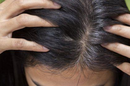 Grey Hair Home Remedies