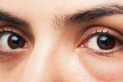 Tips For Puffy Eyes