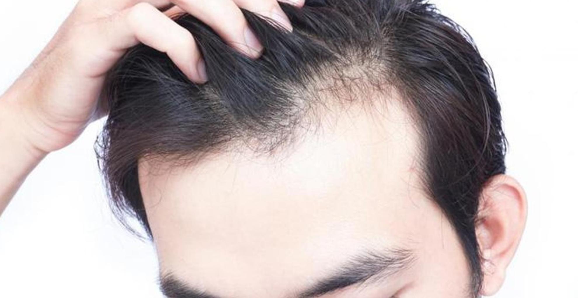 Hair Care Tips: गंजेपन की परेशानी से बचने के लिए अपनाएं ये घरेलू उपाय, झड़ते बालों से मिलेगी राहत