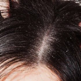 Tomatoes Hair Benefits