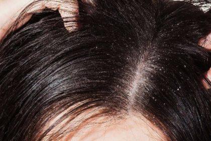 Tomatoes Hair Benefits
