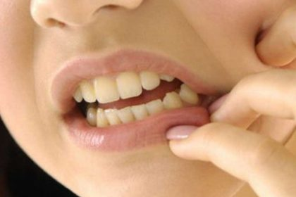 Home Remedies For Mouth Ulcer