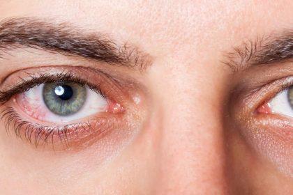 Monsoon Eye Infection home Remedies