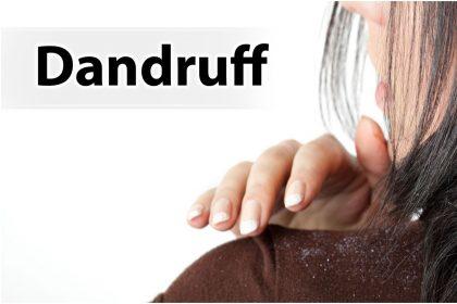 Hair Care Tips: इन देसी उपायों से डैंड्रफ को हमेशा के लिए अपने बालों से करेंबाय-बाय, अपनाए ये सिंपल टिप्स
