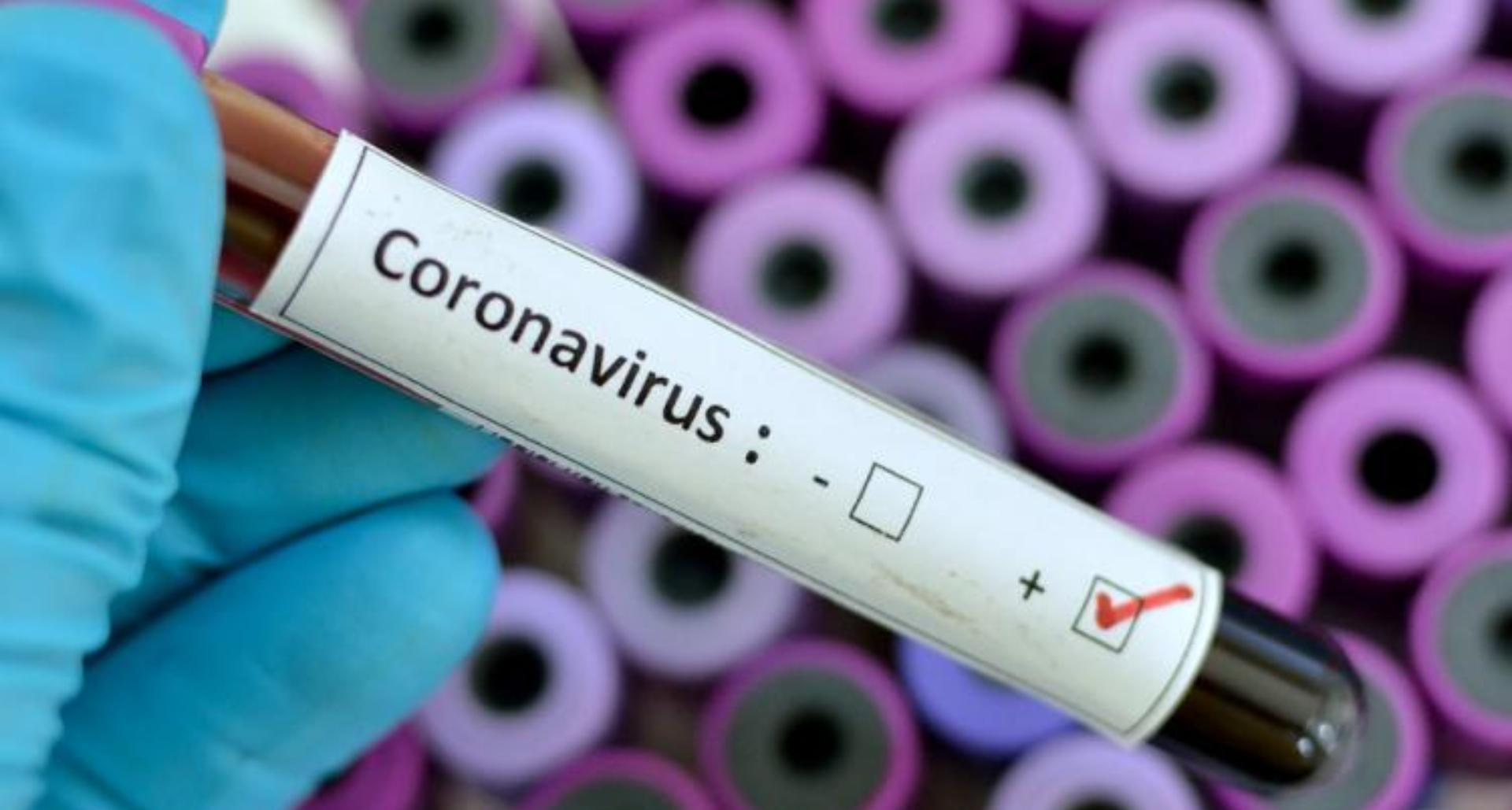 Coronavirus Symptoms: कोरोना वायरस क्या हैं? जानिए इसके लक्षण, उपचार और रोकथाम