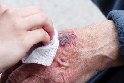 Health Tips: खुले घावों के लिए इन होम रेमेडीज इस्तमाल करे जो अच्छी तरह से घाव ठीक करने में काम करते हैं